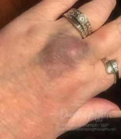 #1 Dawn's Bruise February 2017